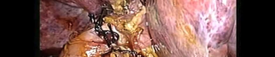 Figure 3. Choledochoduodenostomy finished