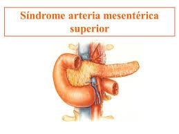 sindrome AMS