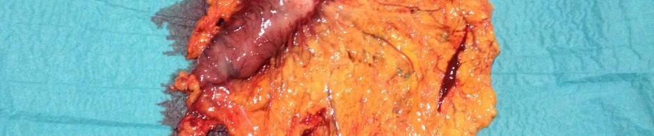 Pieza gastrectomía subtotal ayudo Isabel